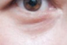 在黑眼圈和泪沟都很明显情况下,应该选择玻尿酸还是自体脂肪来做填充?test