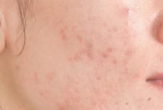 如何去除长期存在的痘印?