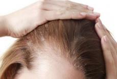 女生如何治疗脱发?