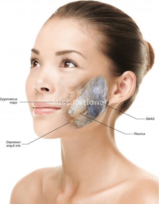 SMAS筋膜层位置