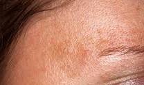 黄褐斑诱因