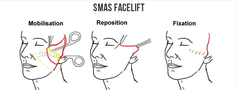 SMAS整容面部提升