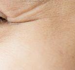 眼角鱼尾纹