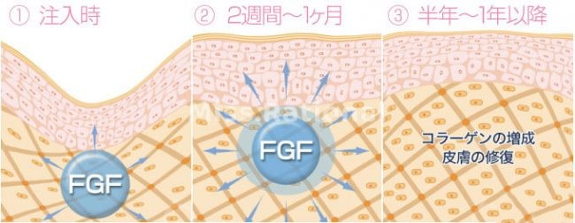 bFGF修复时间