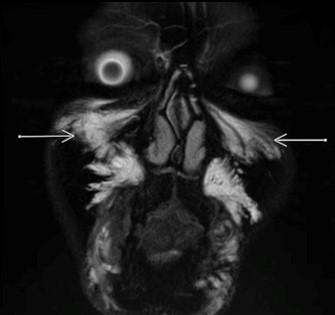 玻尿酸面部残留-泪沟和苹果肌