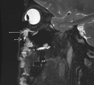 MRI玻尿酸检测