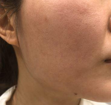 多伦多皮肤管理